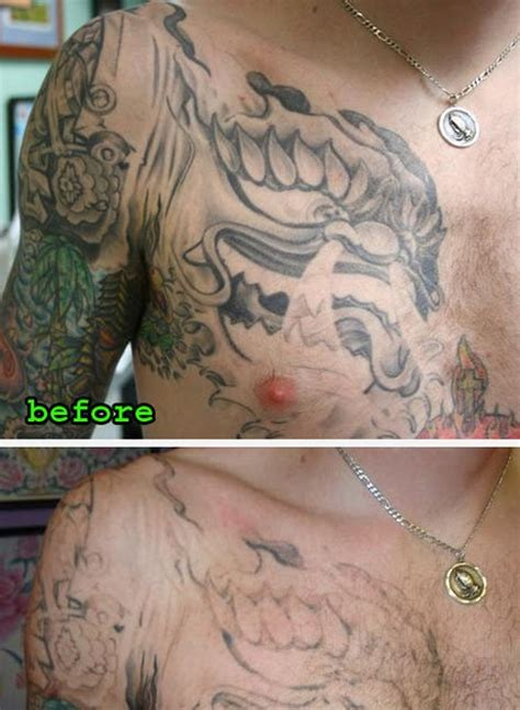 Tattoo Removal Before And After