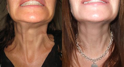 Botox Results   Dr