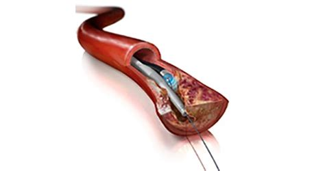 Approval for peripheral atherectomy devices - Today's